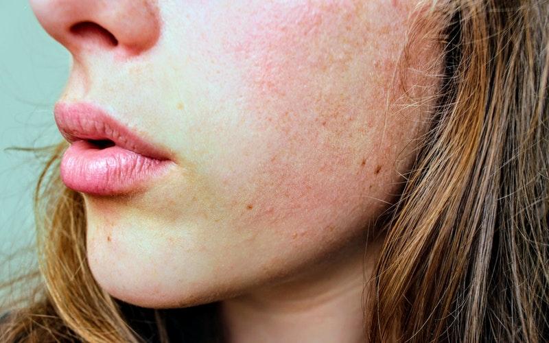 microblading per differenti tipi di pelle