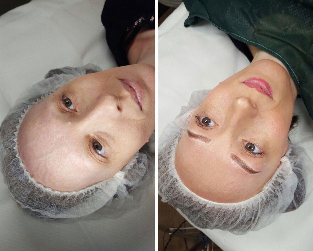 dermopigmentazione paramedicale